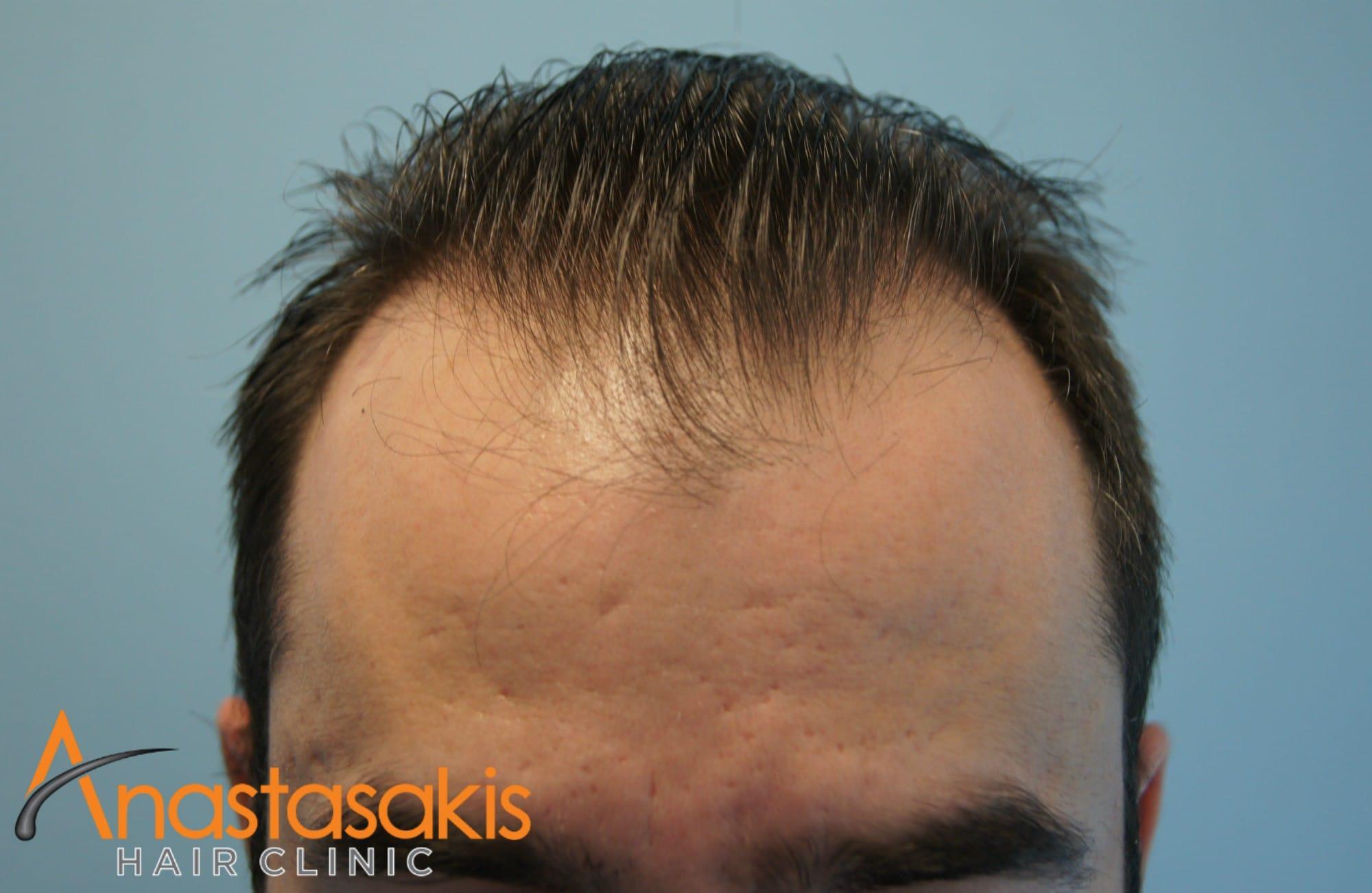 ανφας ασθενους πριν τη μεταμοσχευση μαλλιων με 2500fus