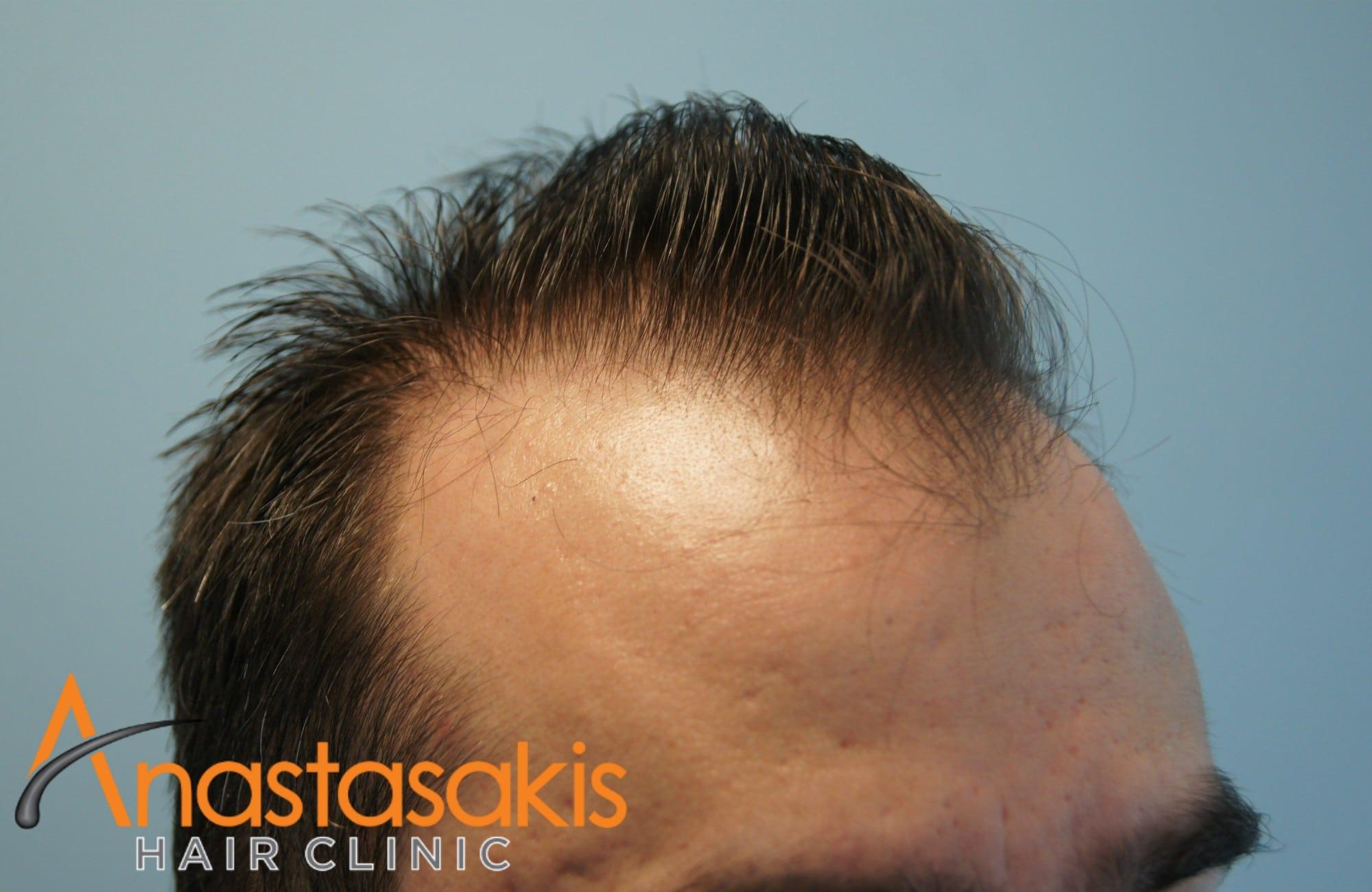 αριστερο προφιλ ασθενους πριν τη μεταμοσχευση μαλλιων με 2500fus