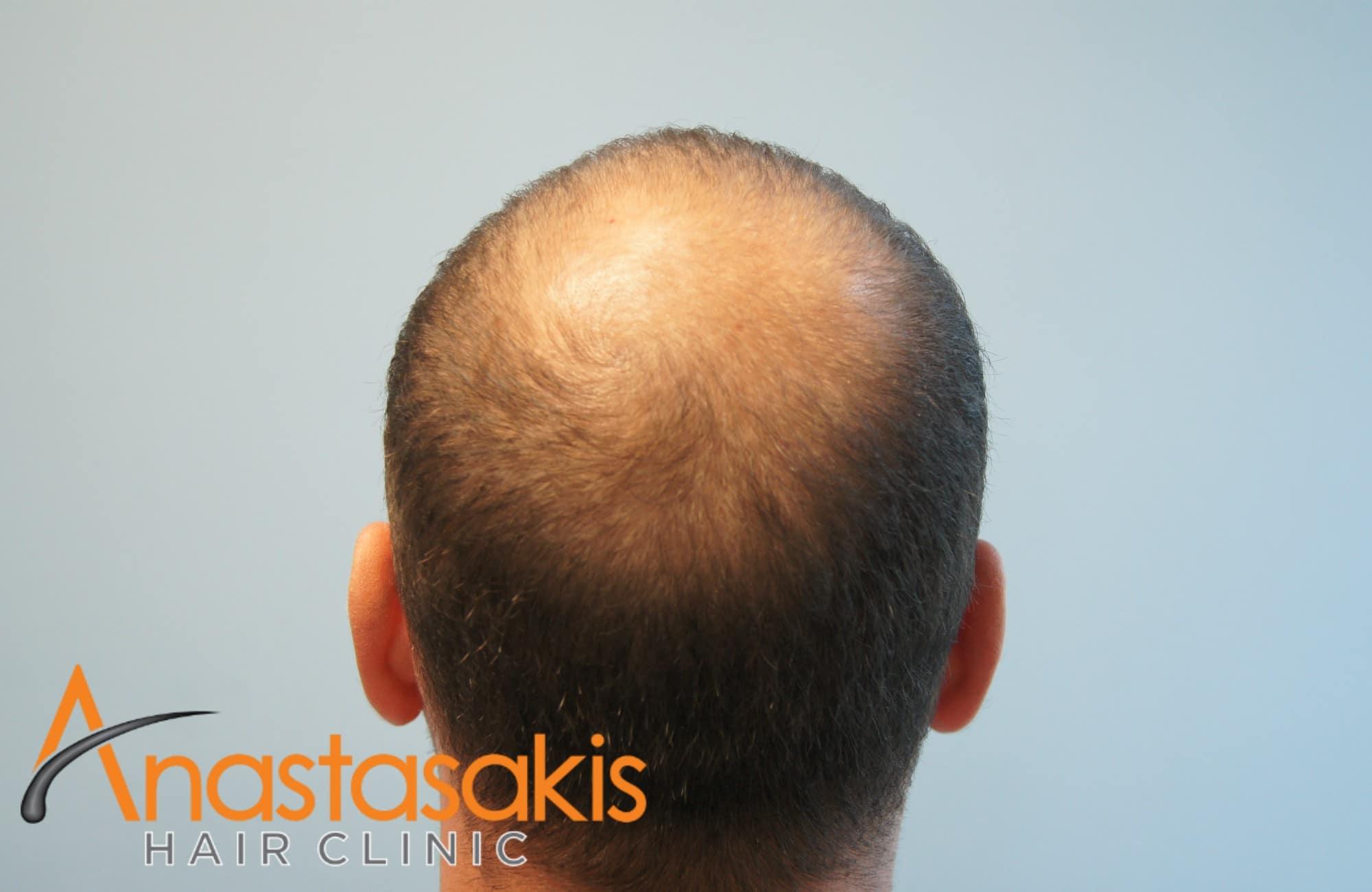 κορυφή ασθενους πριν τη μεταμόσχευσή μαλλιών με 3000 fus