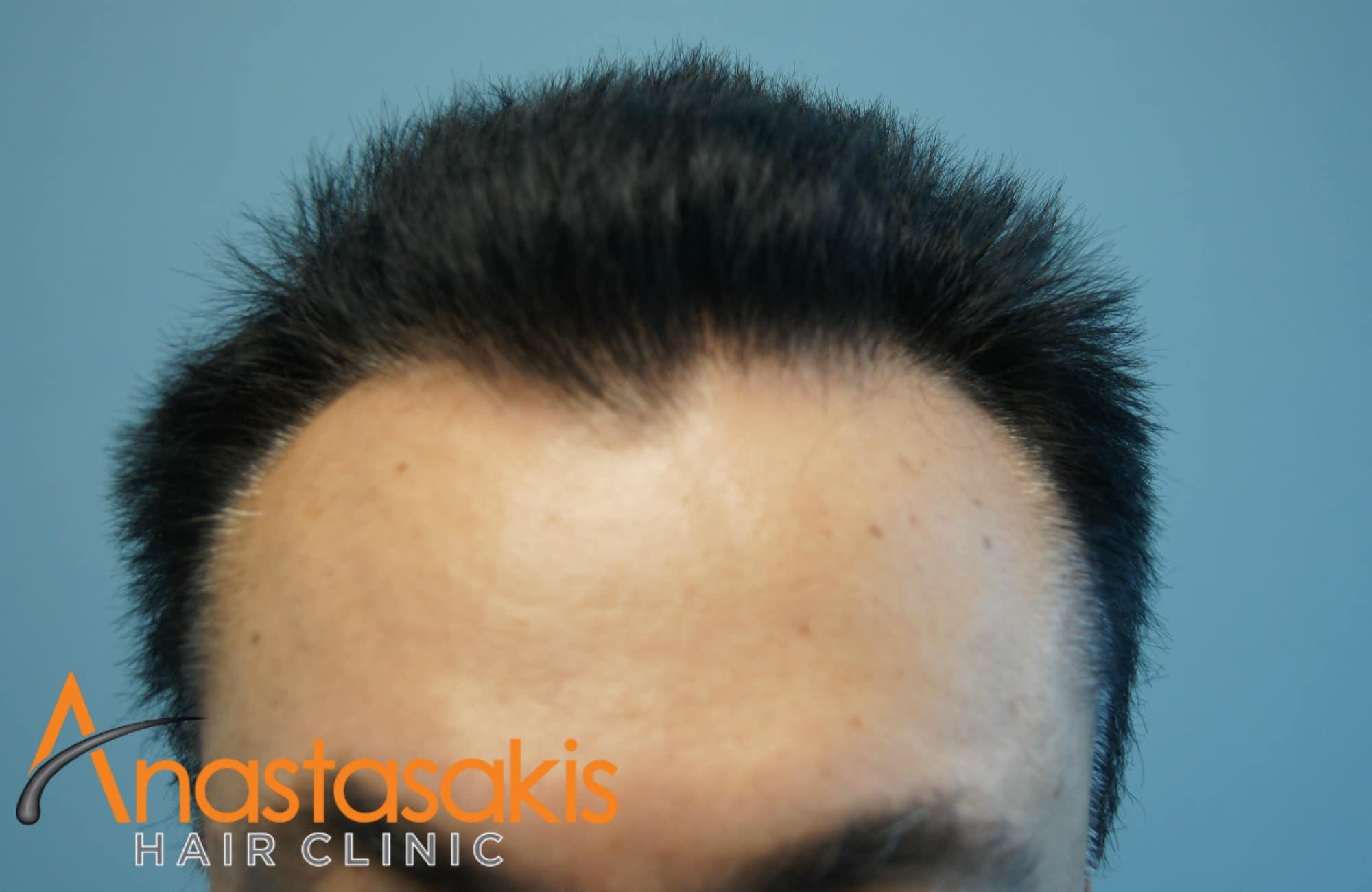 ασθενης πριν τη μεταμοσχευση μαλλιων με 1540fus μπροστα