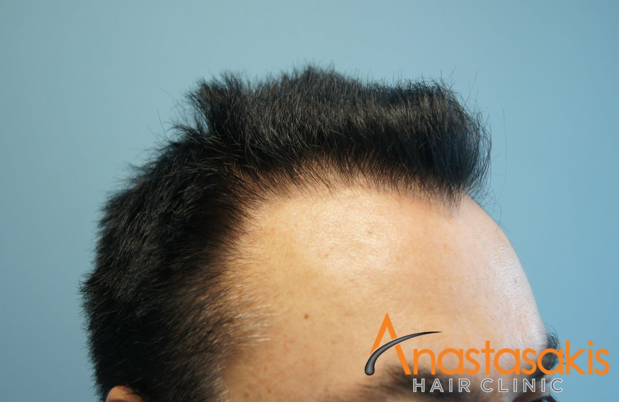 ασθενης πριν τη μεταμοσχευση μαλλιων με 1540fus αριστερο 2 προφιλ