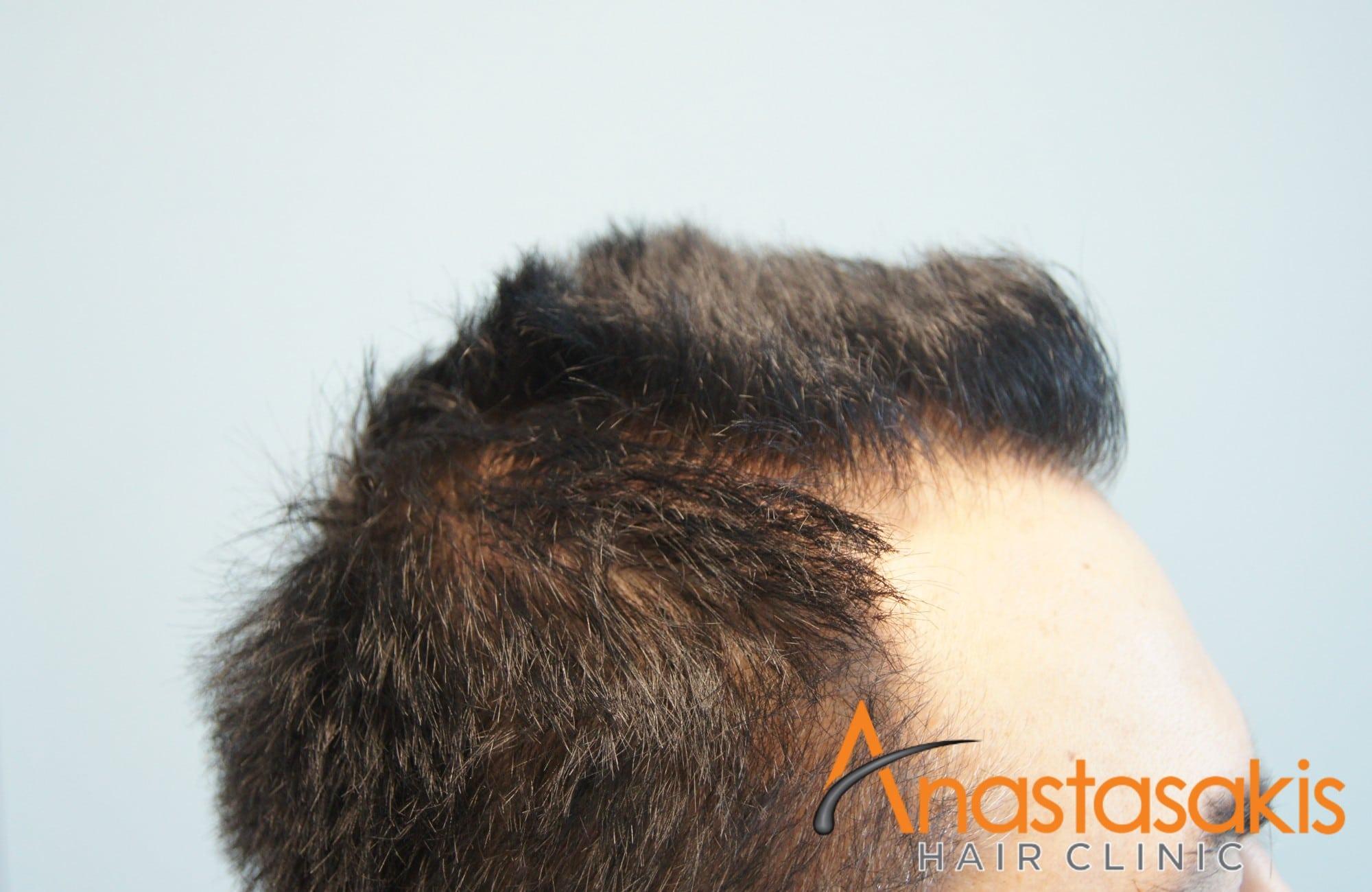 ασθενης πριν τη μεταμοσχευση μαλλιων με 1540fus αριστερο 1 προφιλ