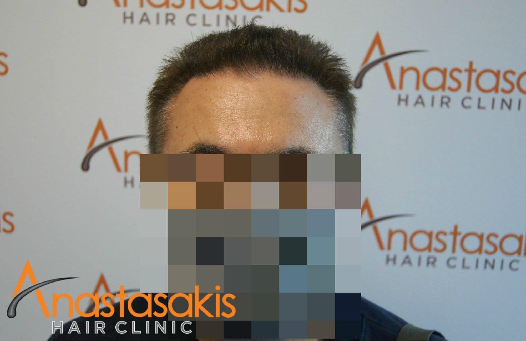 ασθενης μετα τη μεταμοσχευση μαλλιων με 1540fus fullface