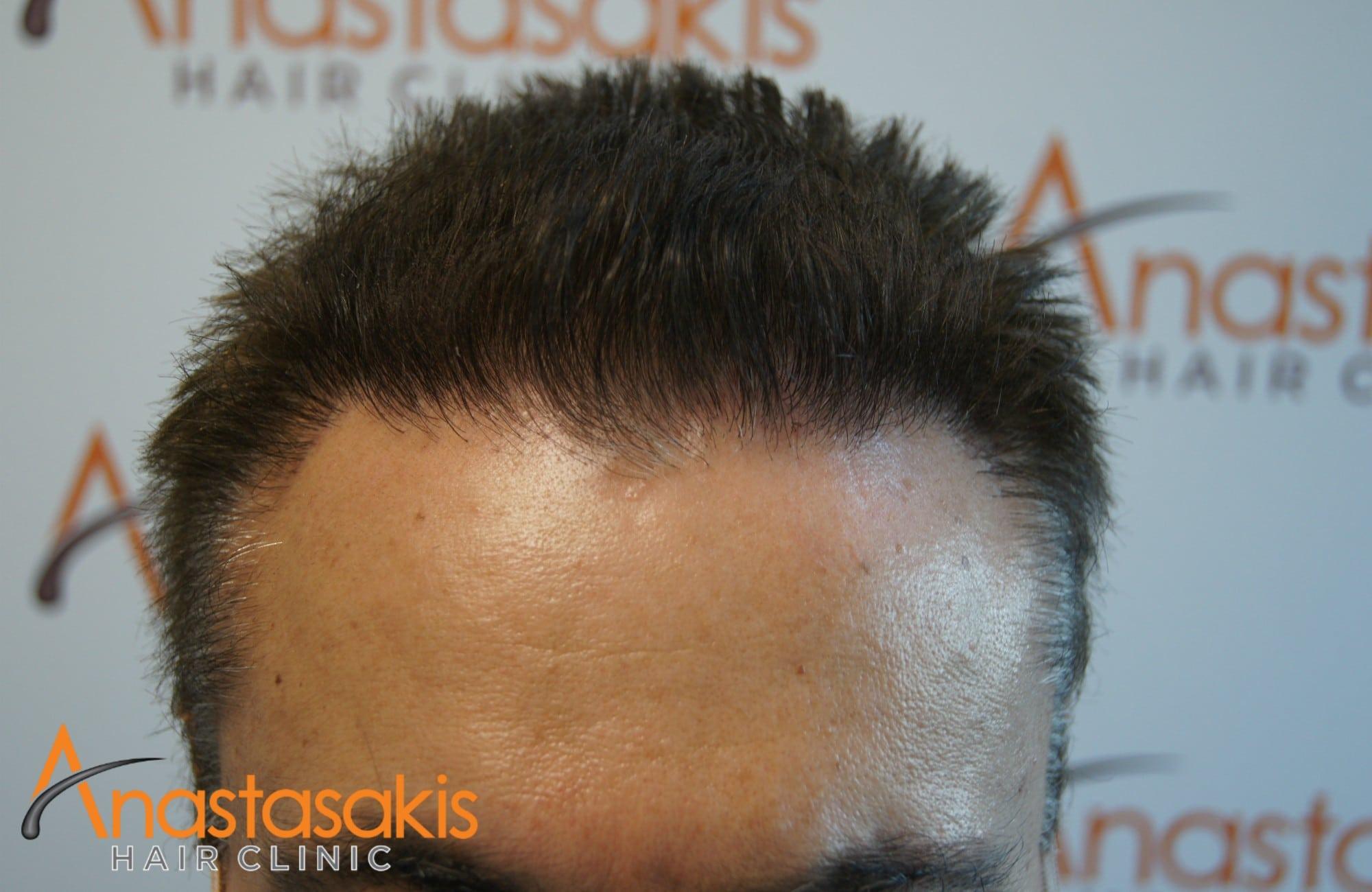 ασθενης μετα τη μεταμοσχευση μαλλιων με 1540fus μπροστα