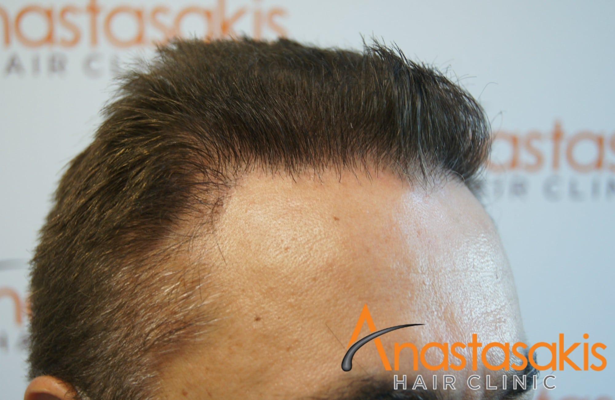 ασθενης μετα τη μεταμοσχευση μαλλιων με 1540fus αριστερο 2 προφιλ