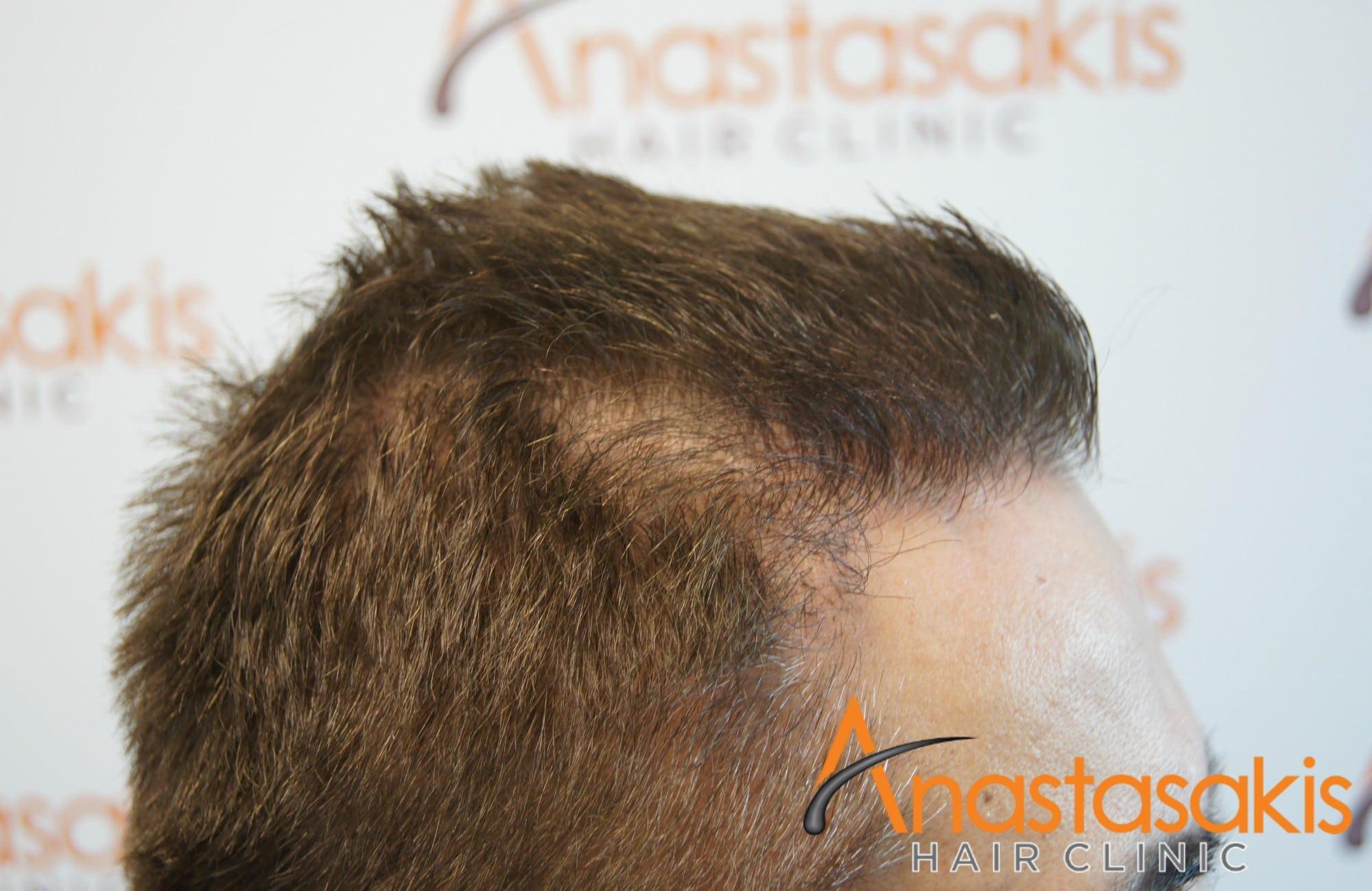 ασθενης μετα τη μεταμοσχευση μαλλιων με 1540fus αριστερο 1 προφιλ