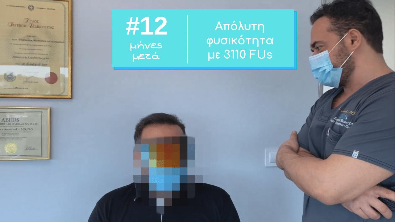 3110 fus apotelesma 12 minon anastasakis hair clinic