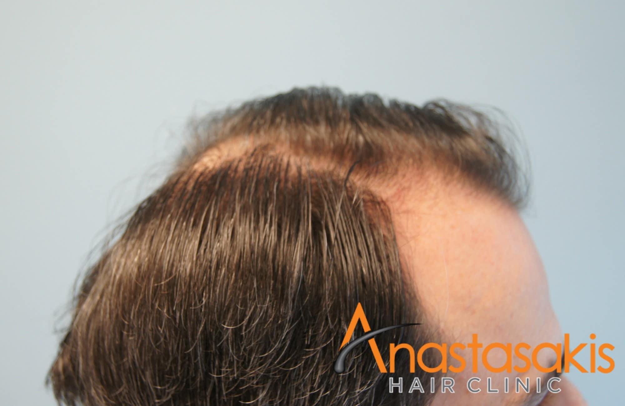 αριστερό προφιλ ασθενους prin τη μεταμοσχευση μαλλιων με 3500 fus με τη μεθοδο fut