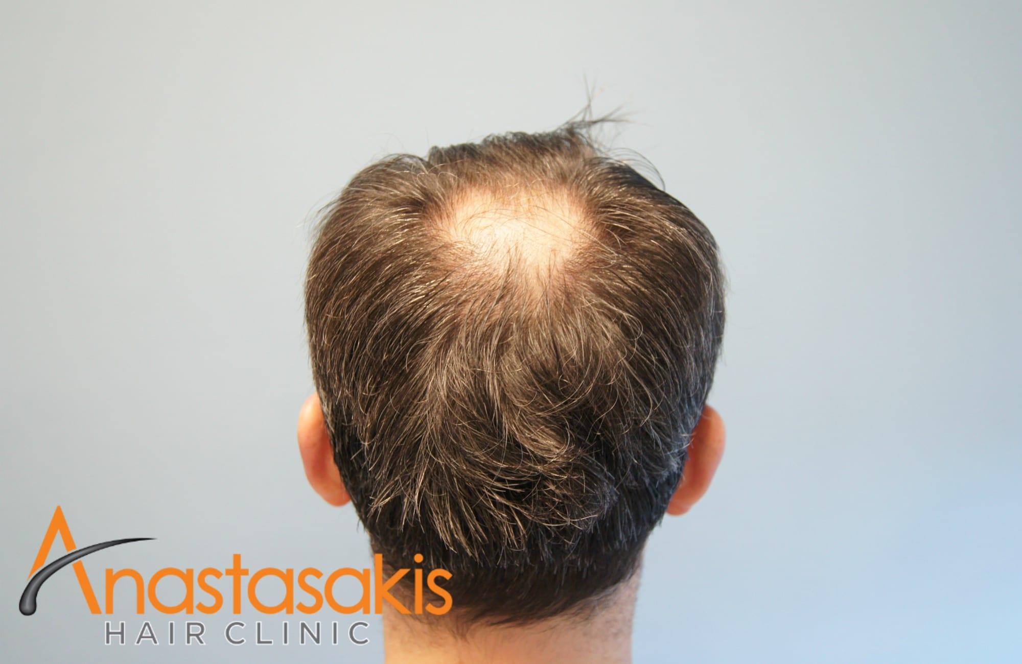 δότρια περιοχη ασθενους πριν τη μεταμοσχευση μαλλιων με 3500 fus