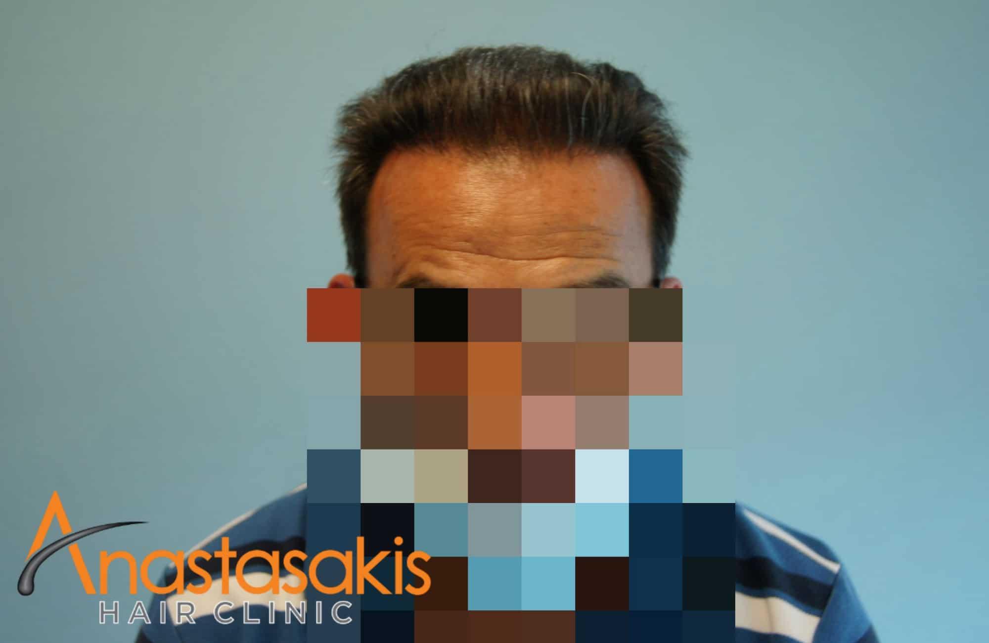 full face ασθενούς μετά τη μεταμοσχευση μαλλιων με 3500 fus με τη μεθοδο fut