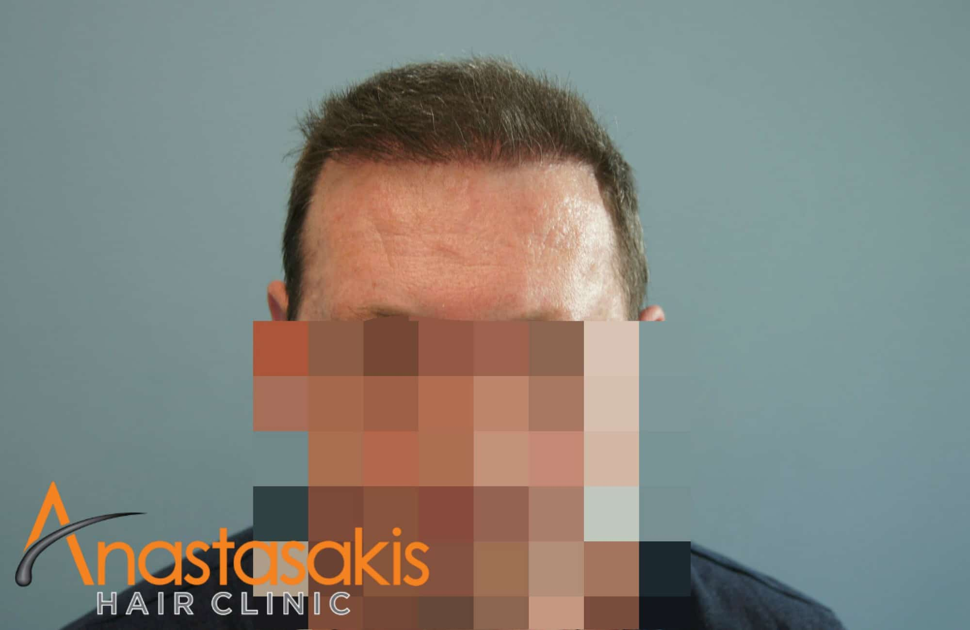 hairline και προσωπο ασθενούς έπειτα από επέμβαση με 3000 Fus