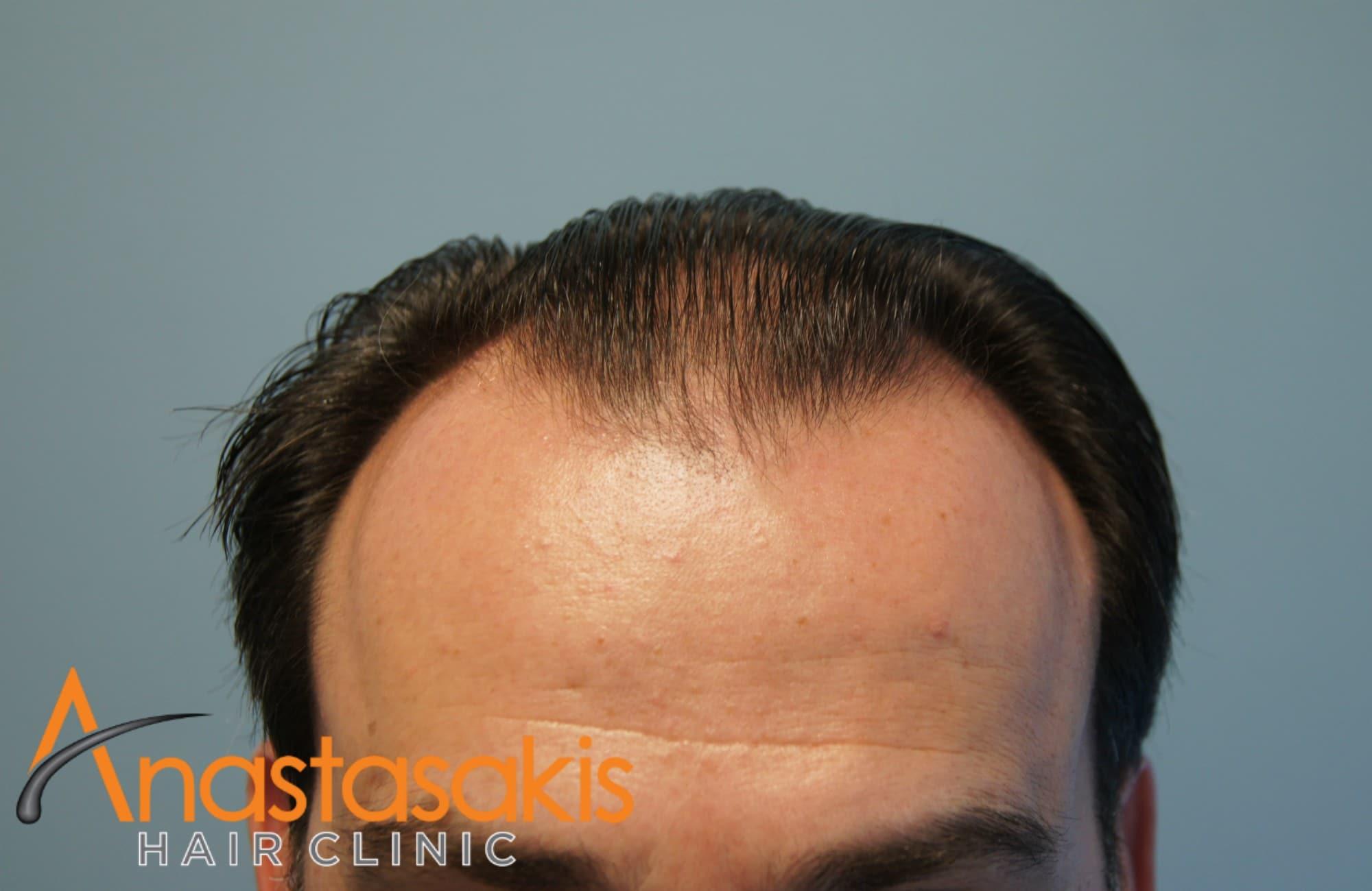 hairline ασθενούς πριν τη μεταμοσχευση μαλλιων με 3500 fus με τη μεθοδο fut