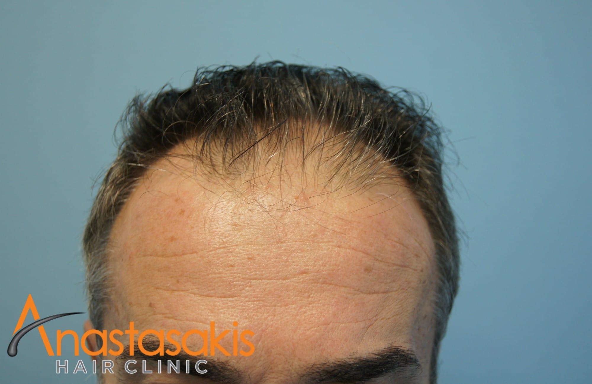 hairline ασθενούς πριν τη μεταμοσχευση μαλλιων με 2153 fus