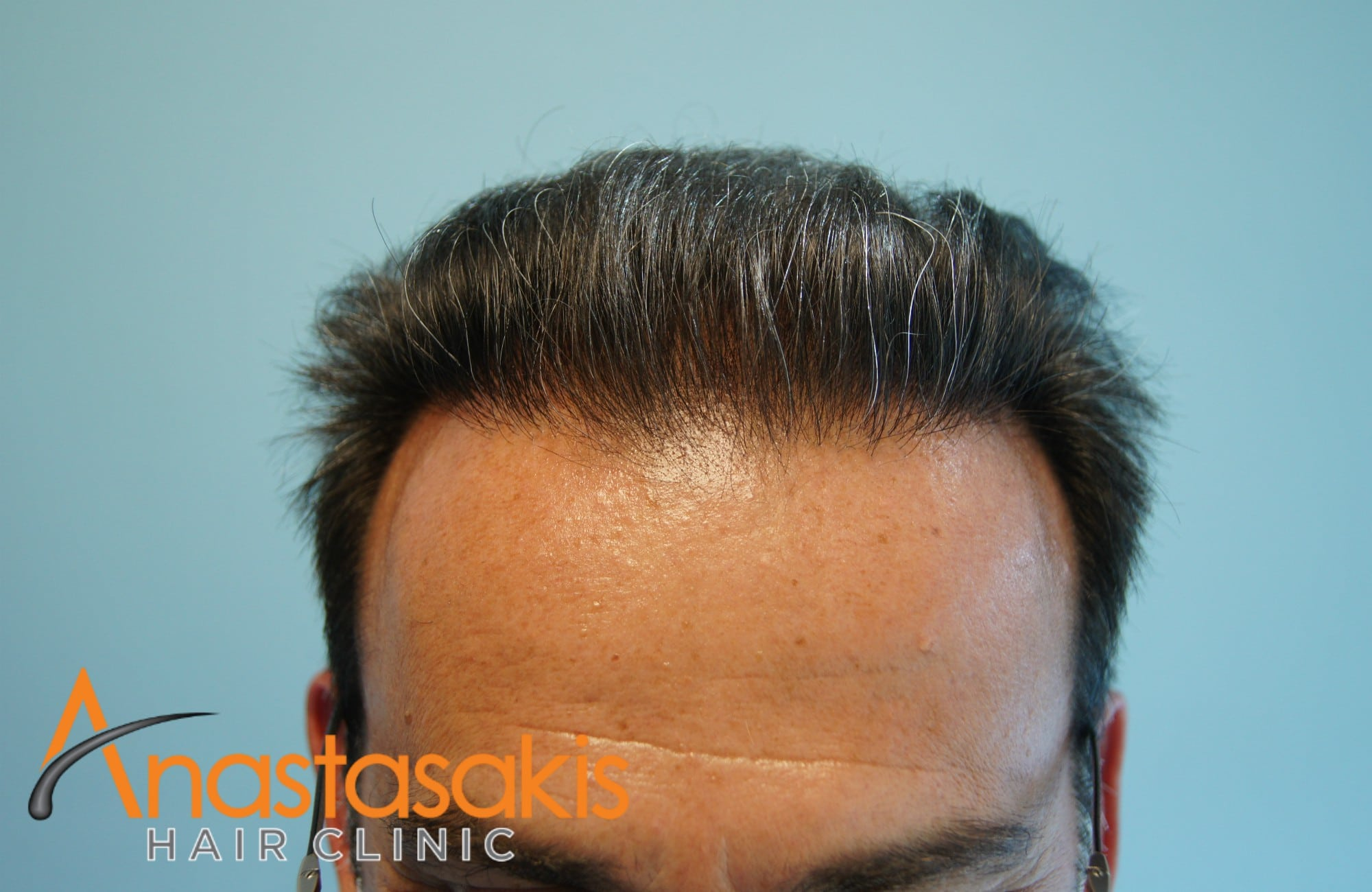 hairline ασθενούς μετά τη μεταμοσχευση μαλλιων με 3500 fus με τη μεθοδο fut