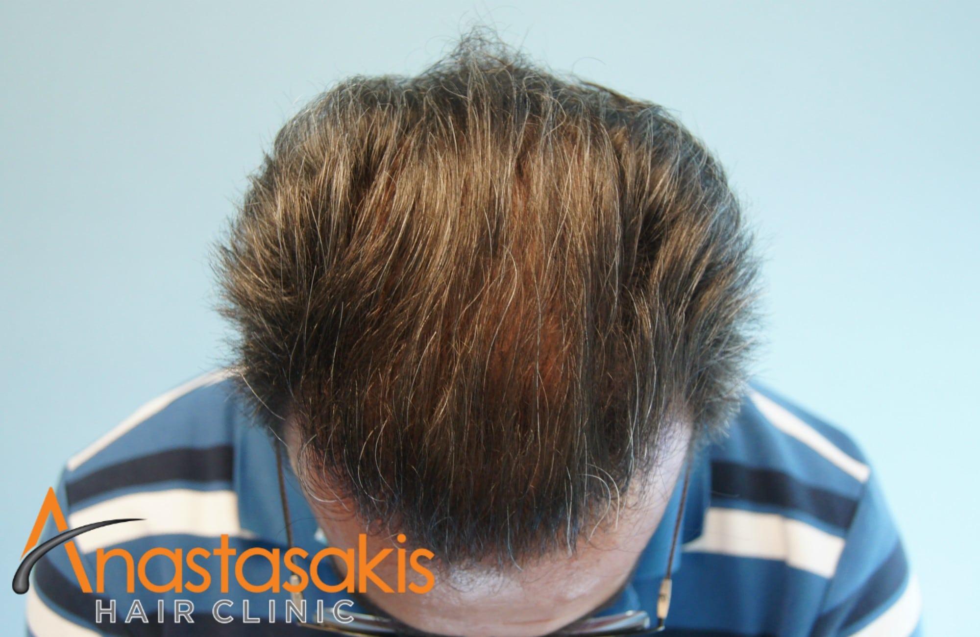 bird view ασθενούς μετά τη μεταμοσχευση μαλλιων με 3500 fus με τη μεθοδο fut