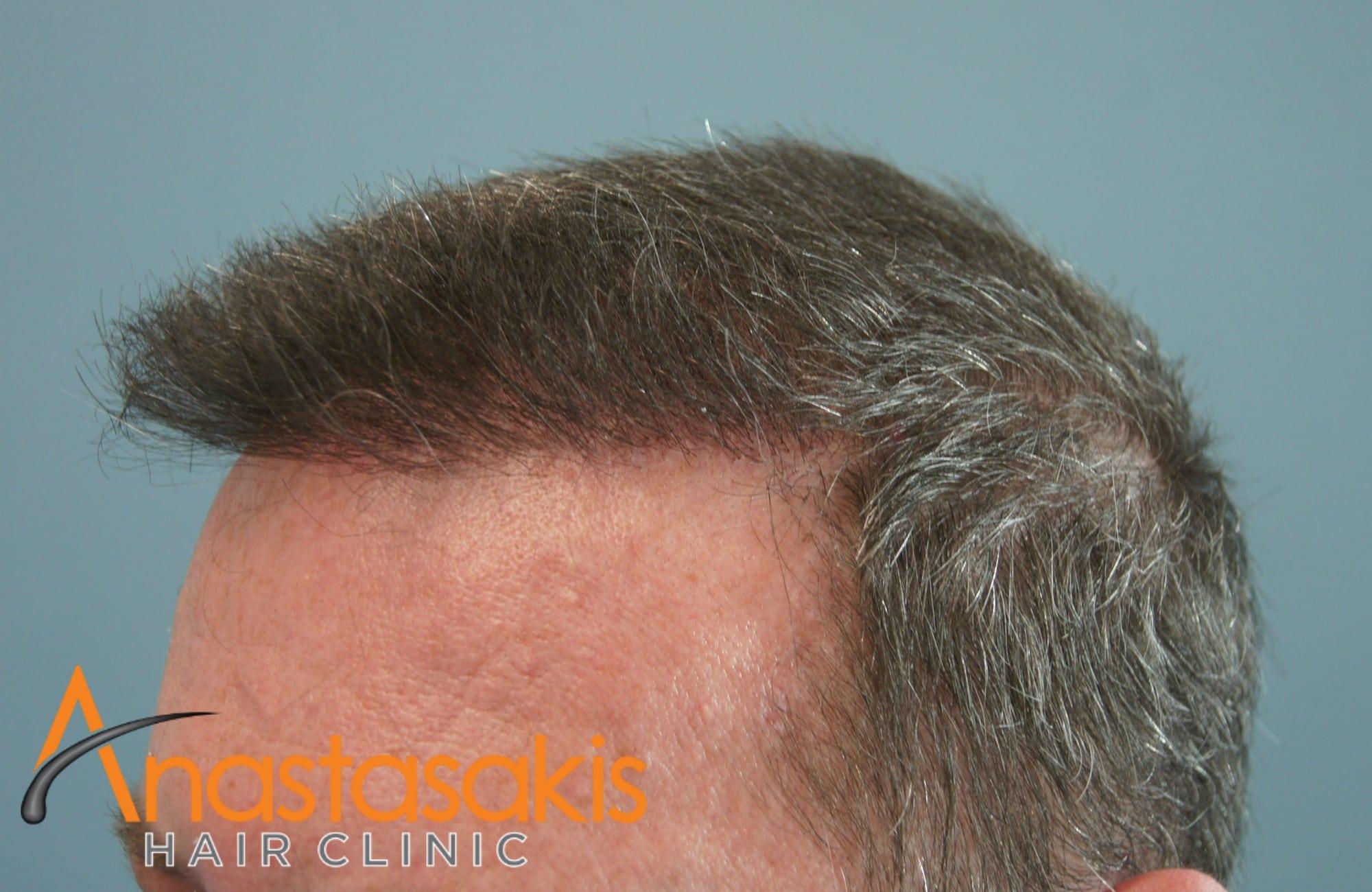 αριστερο προφιλ ασθενούς έπειτα από επέμβαση με 3000 Fus