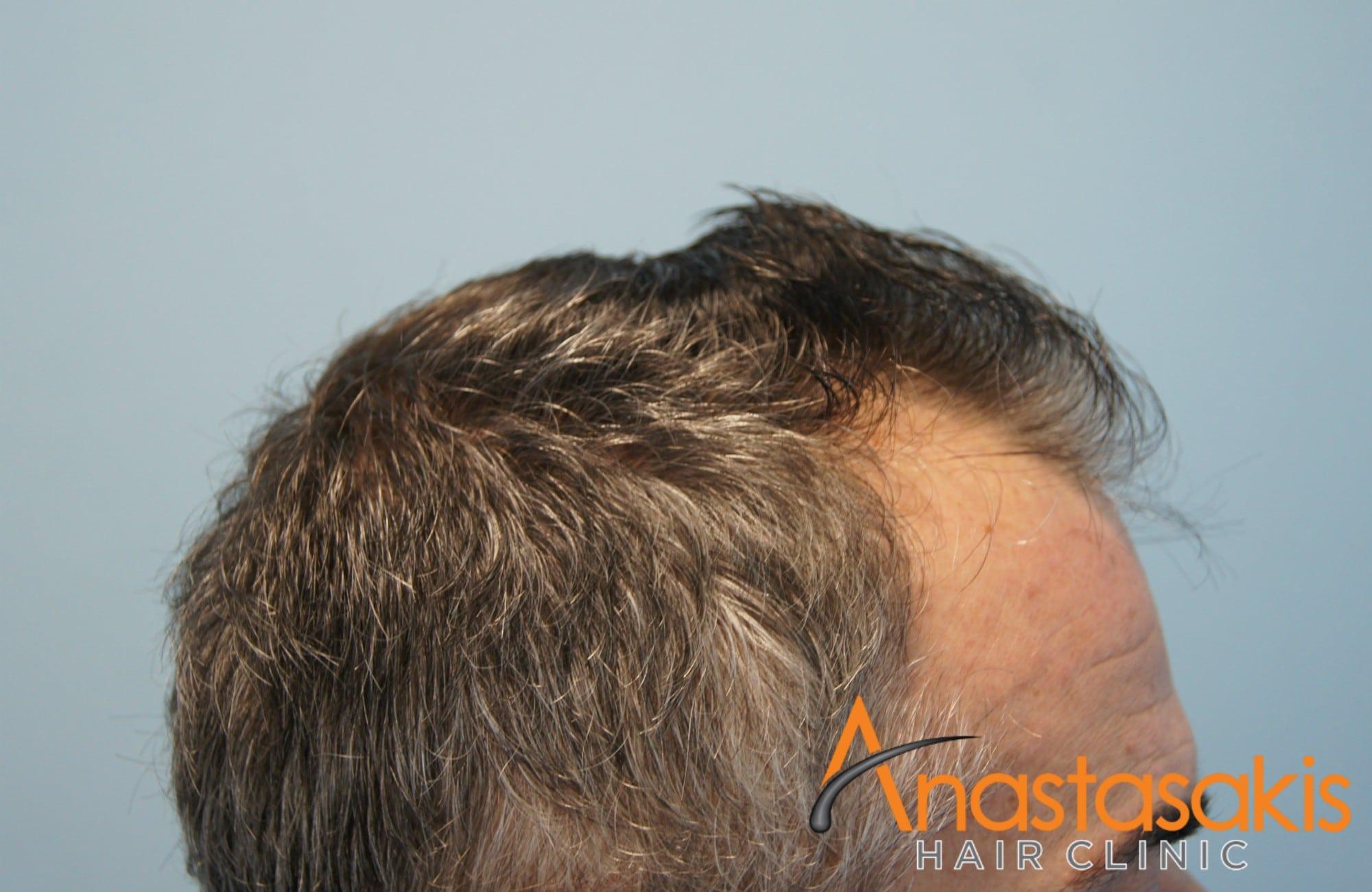 δεξί προφιλ ασθενούς πριν τη μεταμοσχευση μαλλιων με 2153 fus