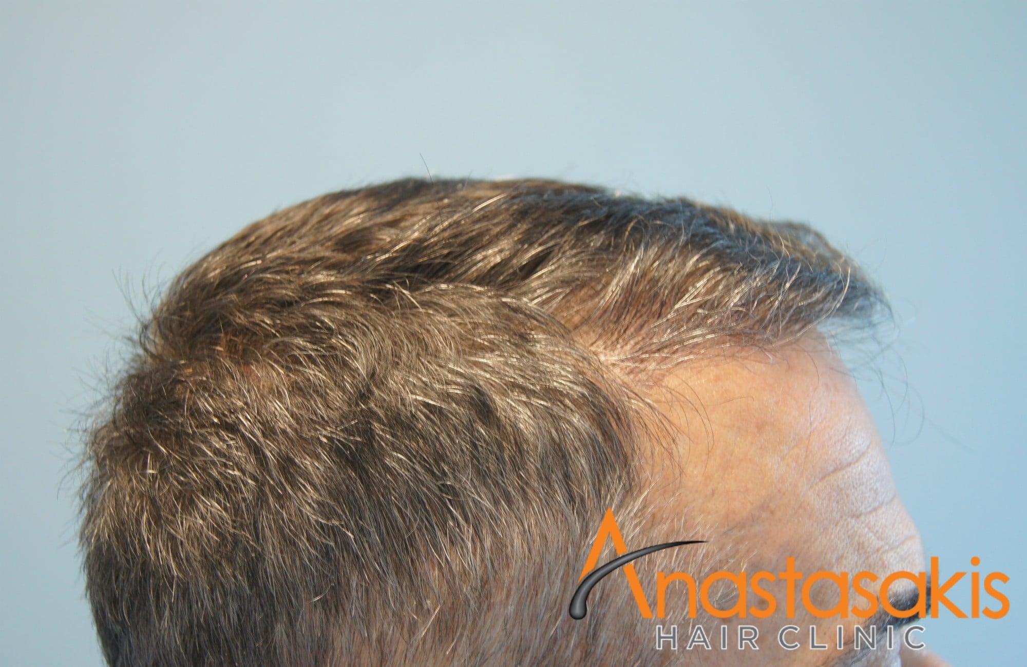 δεξί προφιλ ασθενούς μετα τη μεταμοσχευση μαλλιων με 2153 fus