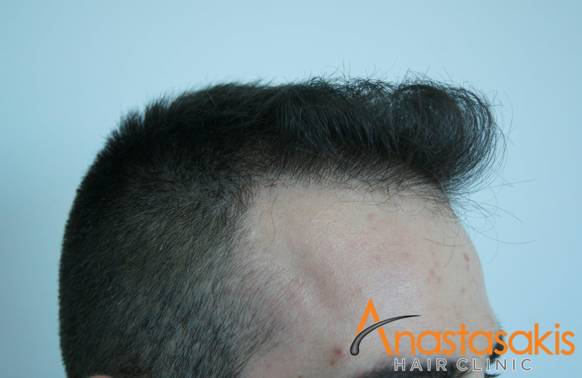 δεξι προφιλ ασθενούς μετά τη μεταμοσχευση μαλλιων με 1500 fus 2