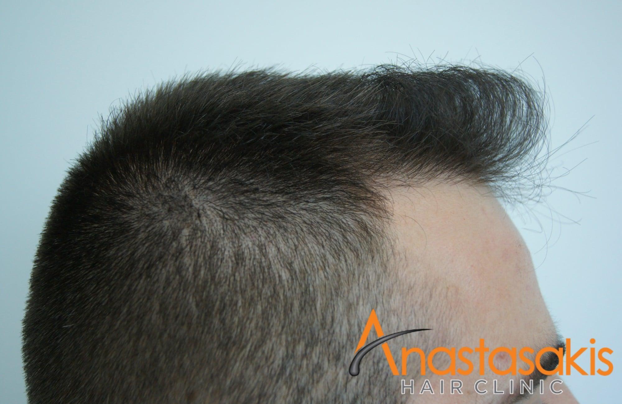 δεξι προφιλ ασθενούς μετά τη μεταμοσχευση μαλλιων με 1500 fus