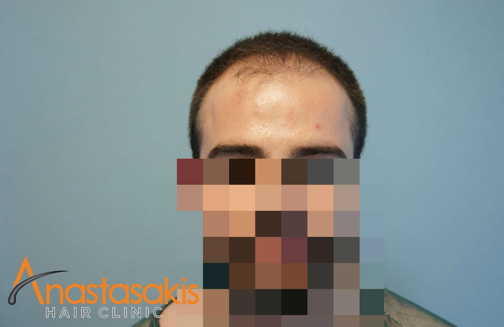 full face ασθενούς πριν τη μεταμοσχευση μαλλιων με 1500 fus