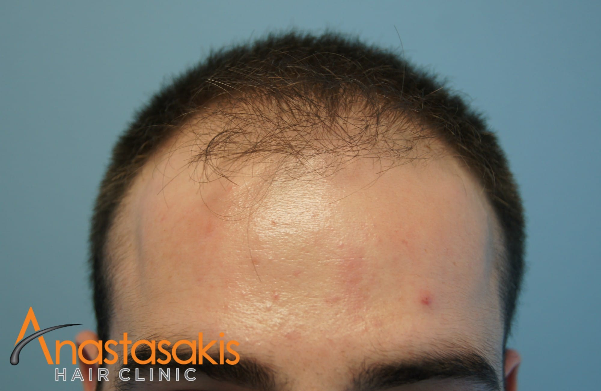 hairline ασθενούς πριν τη μεταμοσχευση μαλλιων με 1500 fus