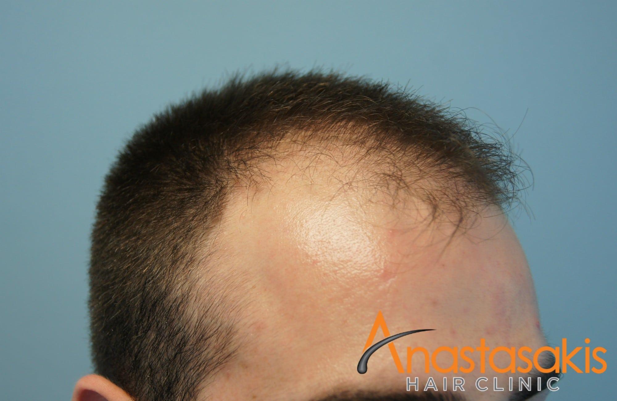 δεξι προφιλ ασθενούς πριν τη μεταμοσχευση μαλλιων με 1500 fus 2