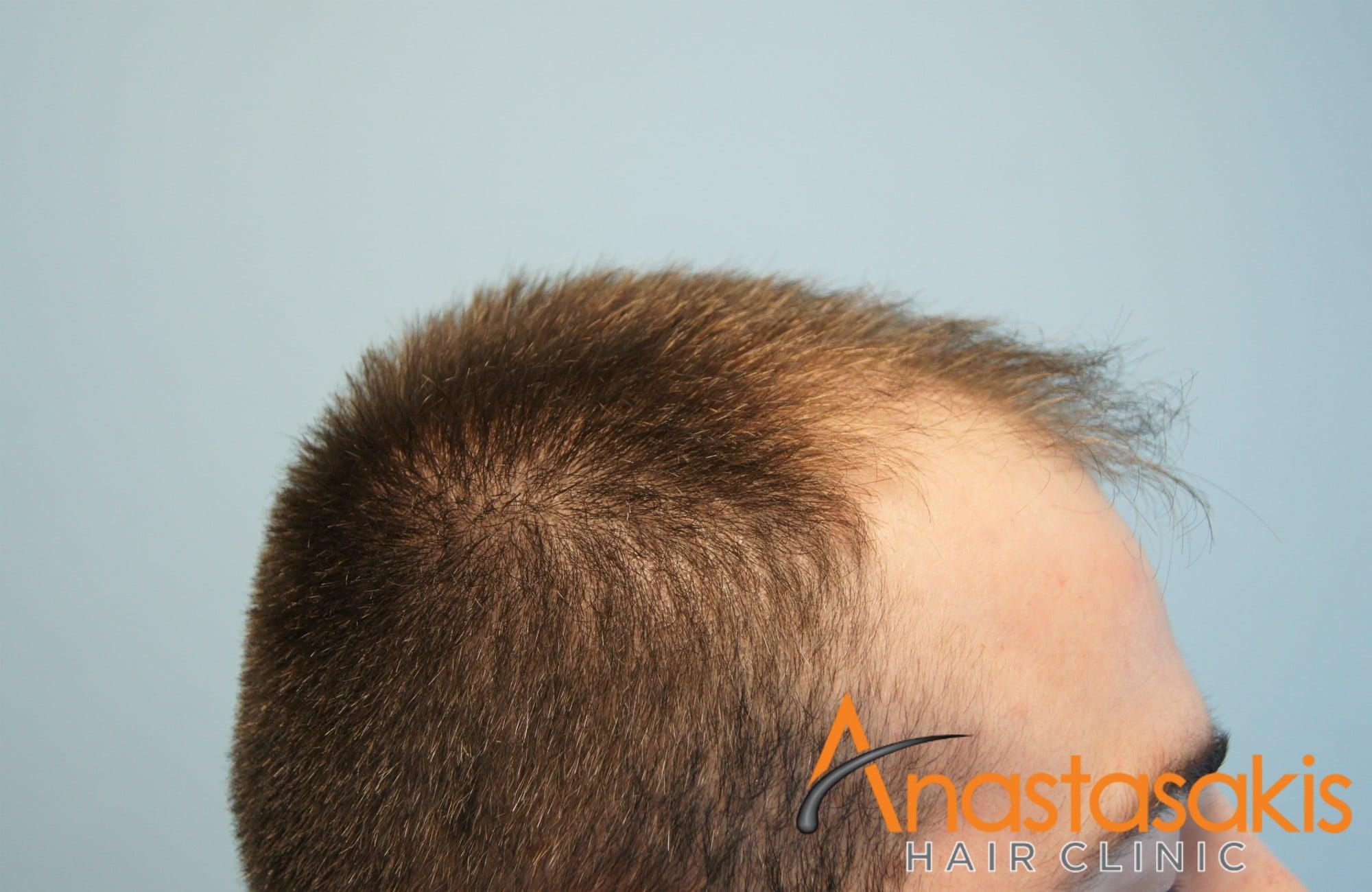 δεξι προφιλ ασθενούς πριν τη μεταμοσχευση μαλλιων με 1500 fus