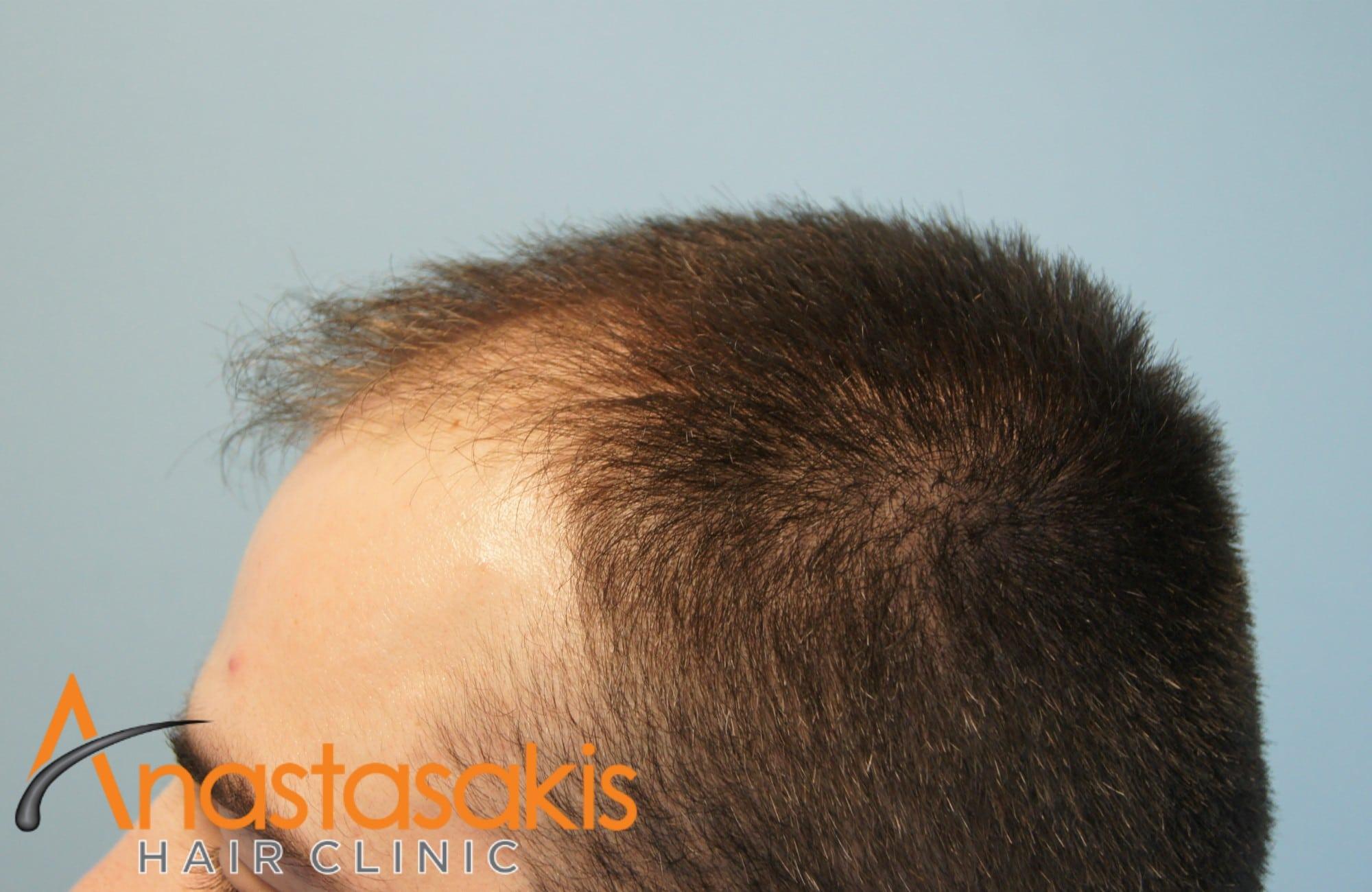 αριστερο προφιλ ασθενούς πριν τη μεταμοσχευση μαλλιων με 1500 fus