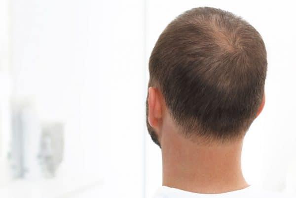 Τελογενής τριχόρροια Anastasakis Hair Clinic