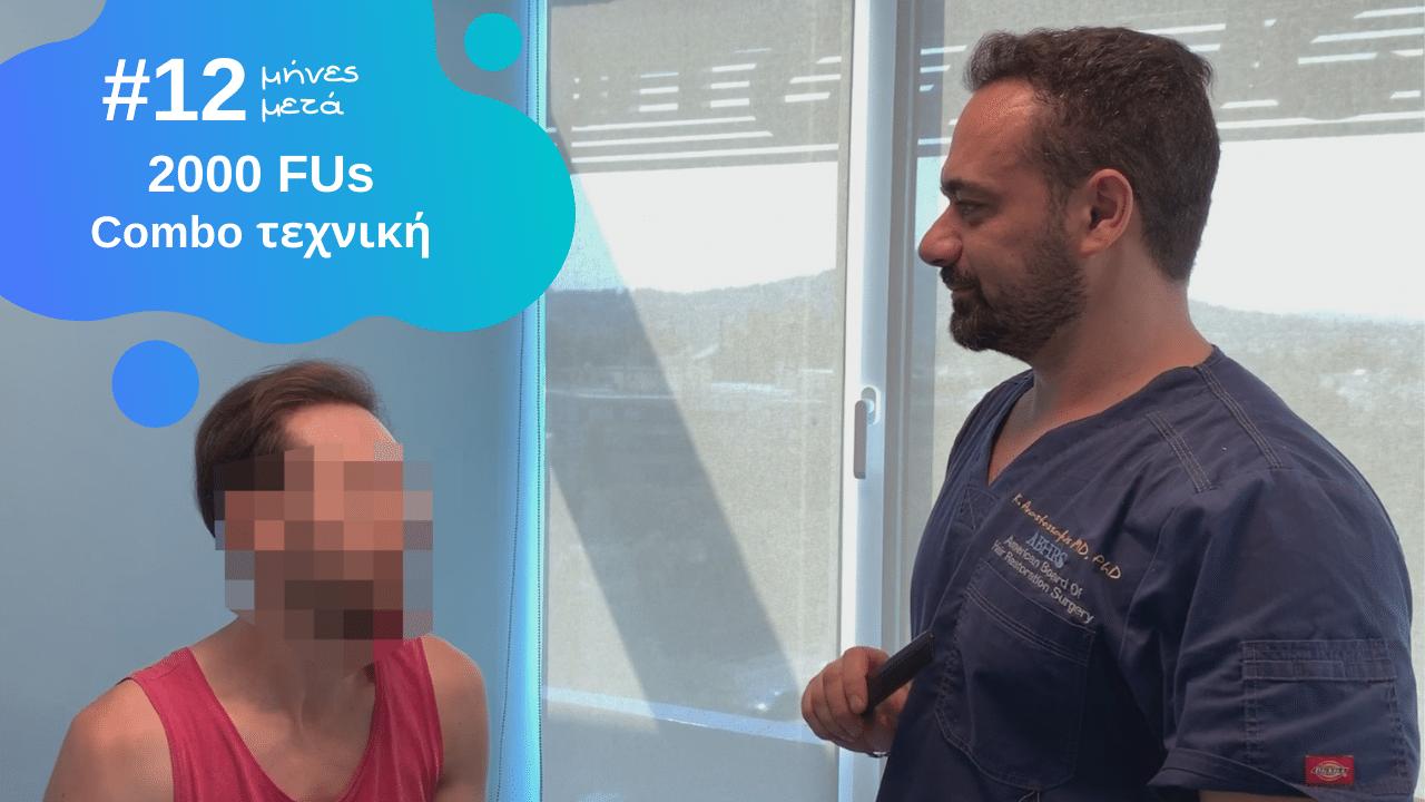 Video αποτελέσματος μεταμόσχευσης μαλλιών με 2000 τριχοθυλάκια, 12 μήνες μετά