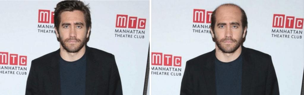 Η αραίωση μαλλιών στον Jake Gyllenhaal