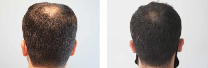 Αραίωση μαλλιών στην κορυφή μεταμόσχευση