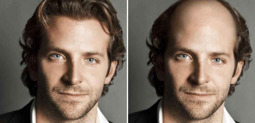 Celebrities χωρίς μαλλιά: Brandley Cooper