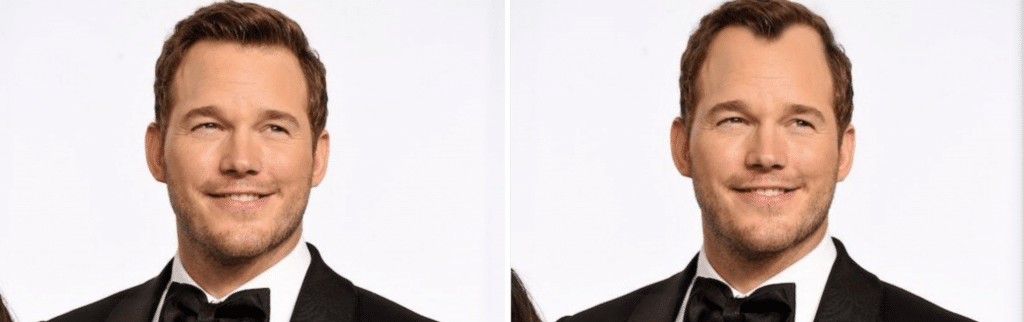 Celebrities χωρίς μαλλιά - Chris Pratt