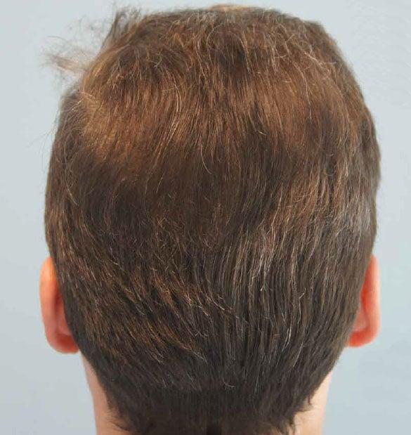 Μεταμόσχευση μαλλιών στην κορυφή κεφαλής