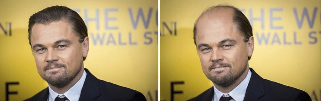 Η τριχόπτωση στο Leonardo Di Caprio