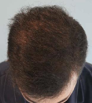 Μετά τη μεταμόσχευση - Αραίωση μαλλιών