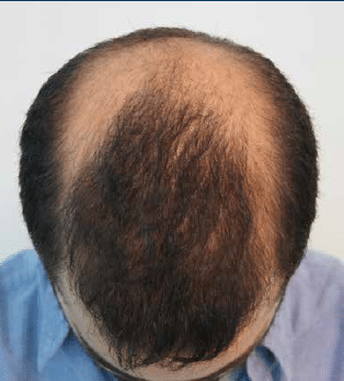 Πριν τη μεταμόσχευση μαλλιών. Αραίωση μαλλιών στην κορυφή και στις πλαϊνές περιοχές