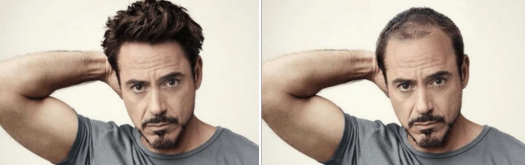 ο Robert Downey Junior με αραίωση μαλλιών