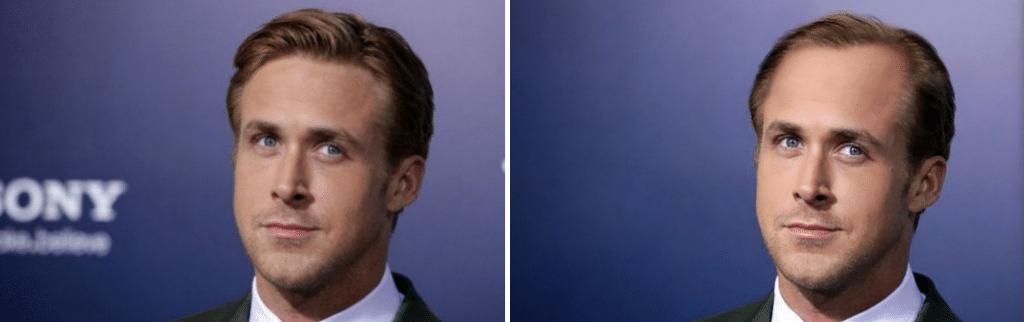 Η τριχόπτωση και ο Ryan Gosling