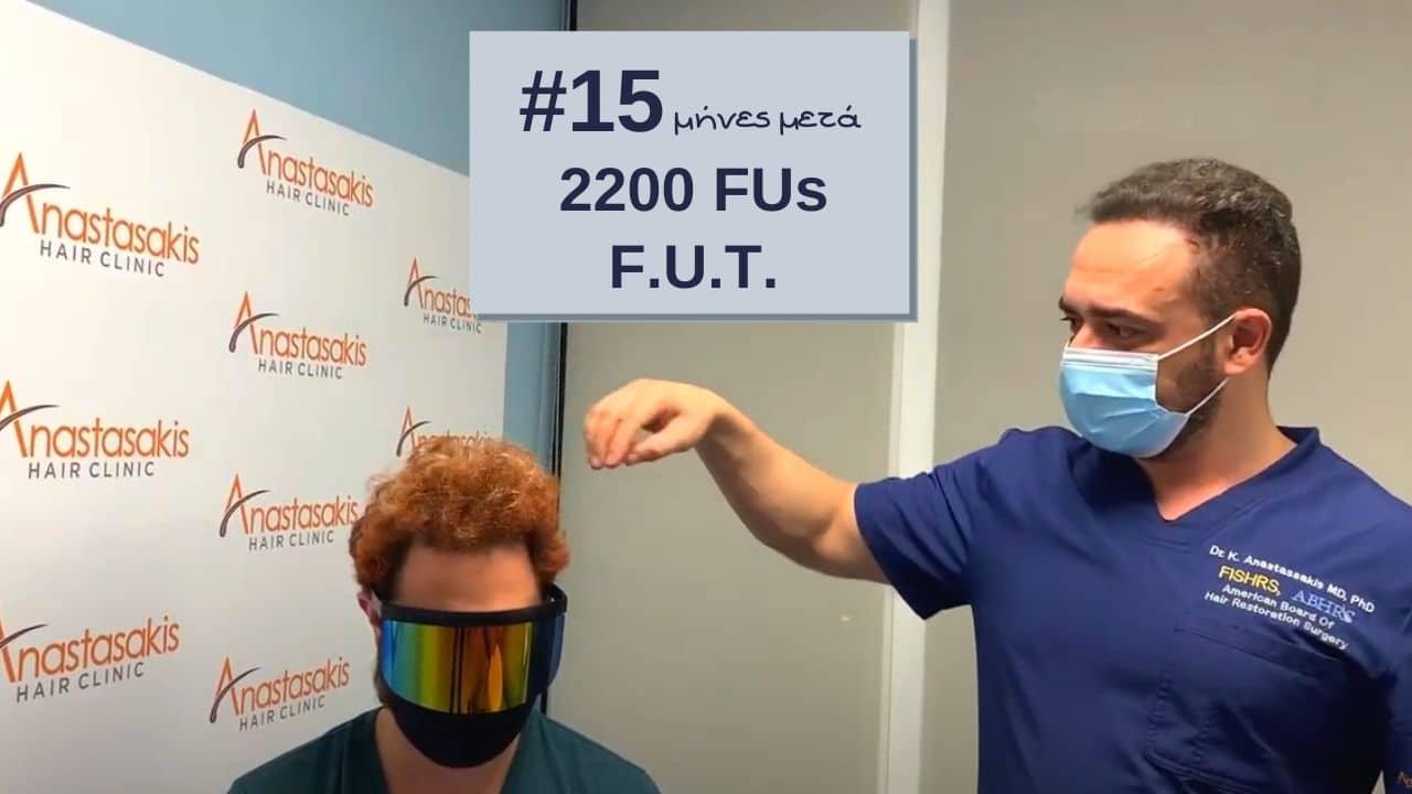 βιντεο ασθενη με αποτελεσμα 15 μηνες μετα τη μεταμοσχευση μαλλιων με 2200 τριχοθυλακια