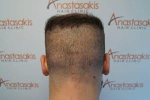 5 ημέρες μετά τη μεταμόσχευση μαλλιών με την τεχνική fue