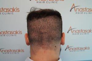 8 ημέρες μετά τη μεταμόσχευση μαλλιών με την τεχνική fue
