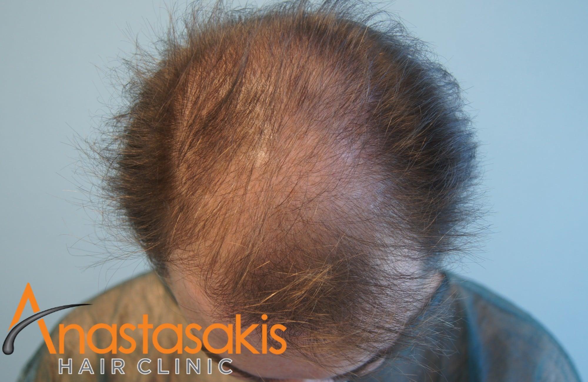 ασθενής πριν τη μεταμόσχευση μαλλιών με fut 3500 fus προσθια περιοχη