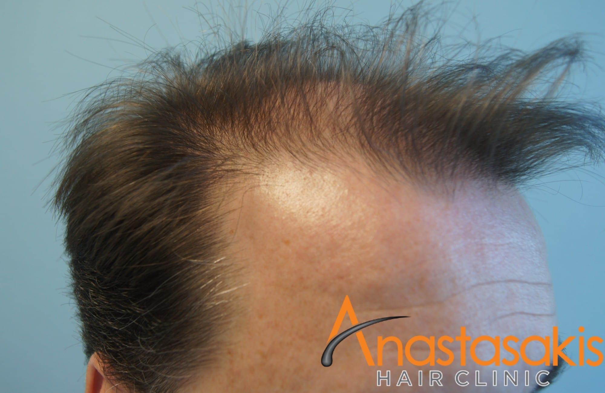 ασθενής πριν τη μεταμόσχευση μαλλιών με fut 3500 fus δεξης κροταφος
