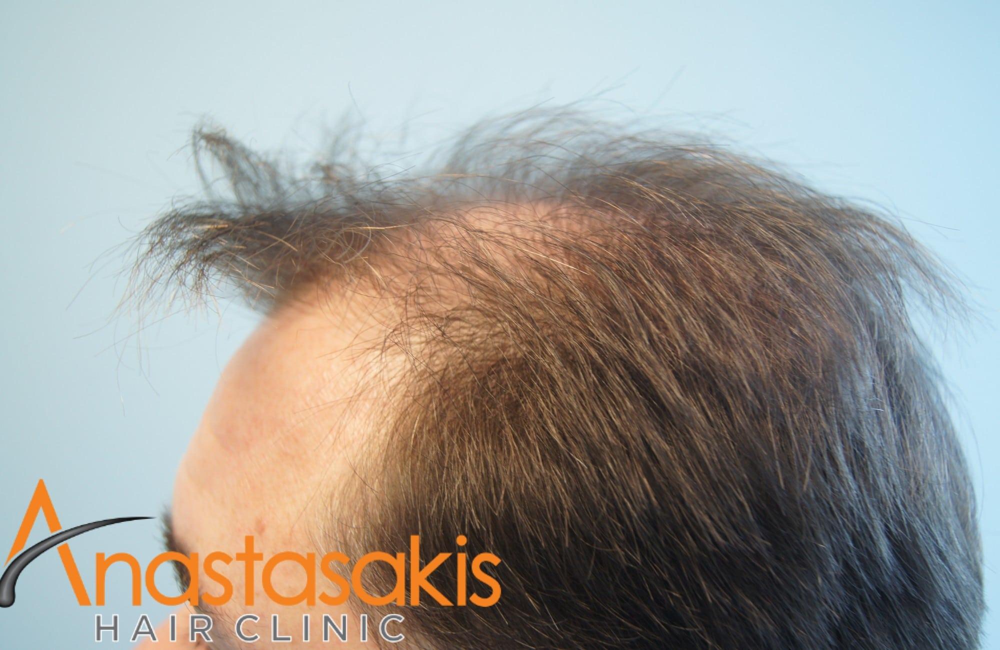 ασθενής πριν τη μεταμόσχευση μαλλιών με fut 3500 fus αριστεροσ κροταφος 2