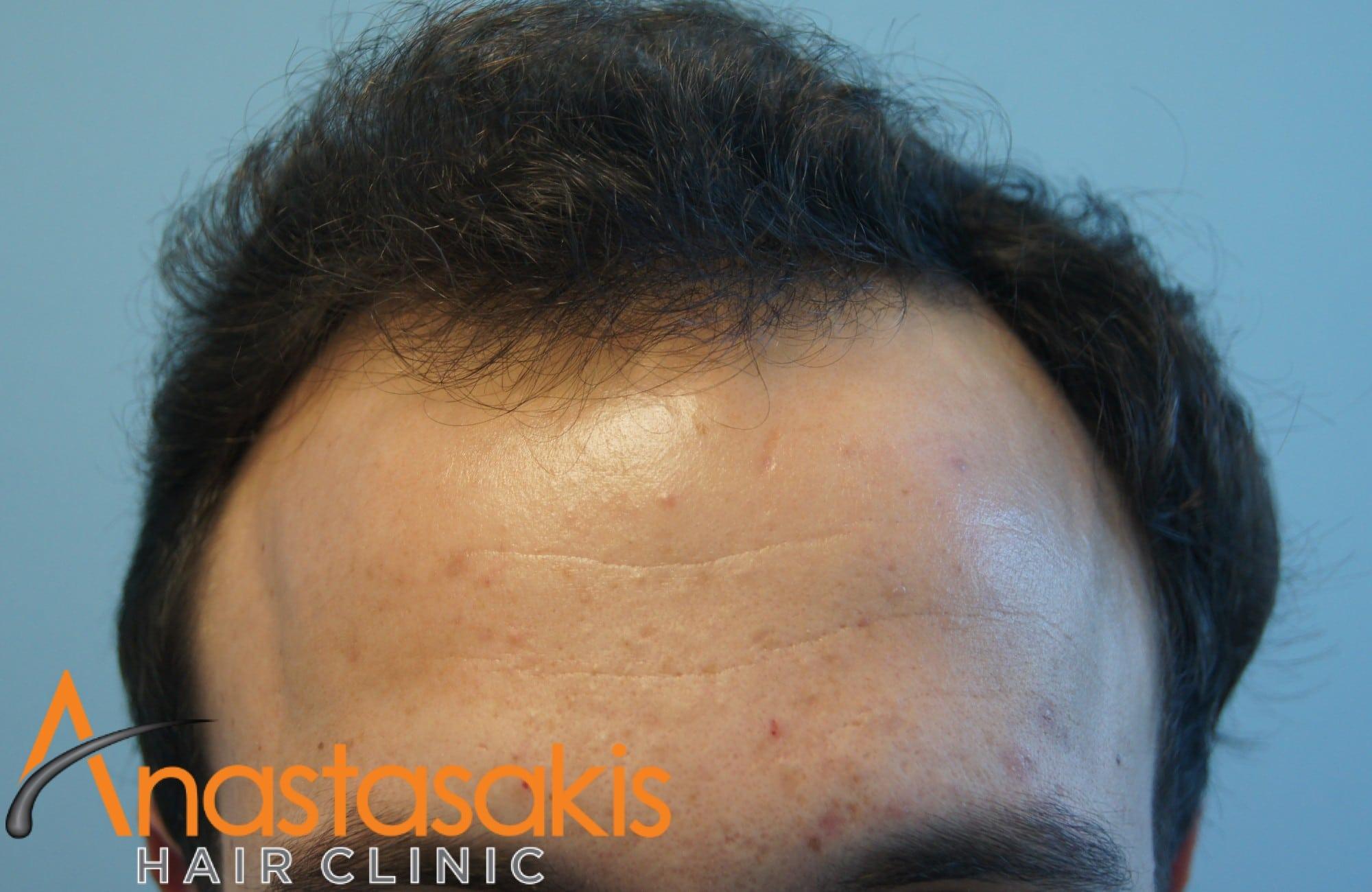 hairline ασθενούς πριν την επέμβαση με 2200 Fus