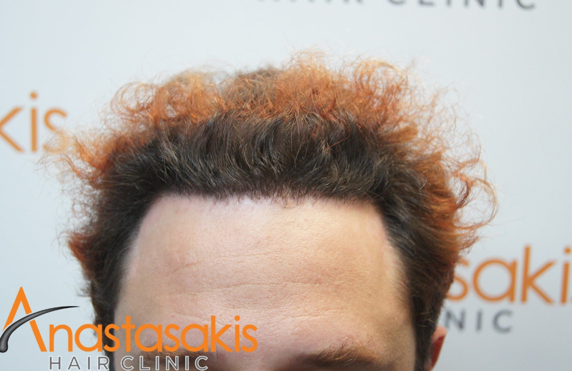 hairline ασθενούς μετα τη μεταμόσχευση μαλλιων με 2200 Fus