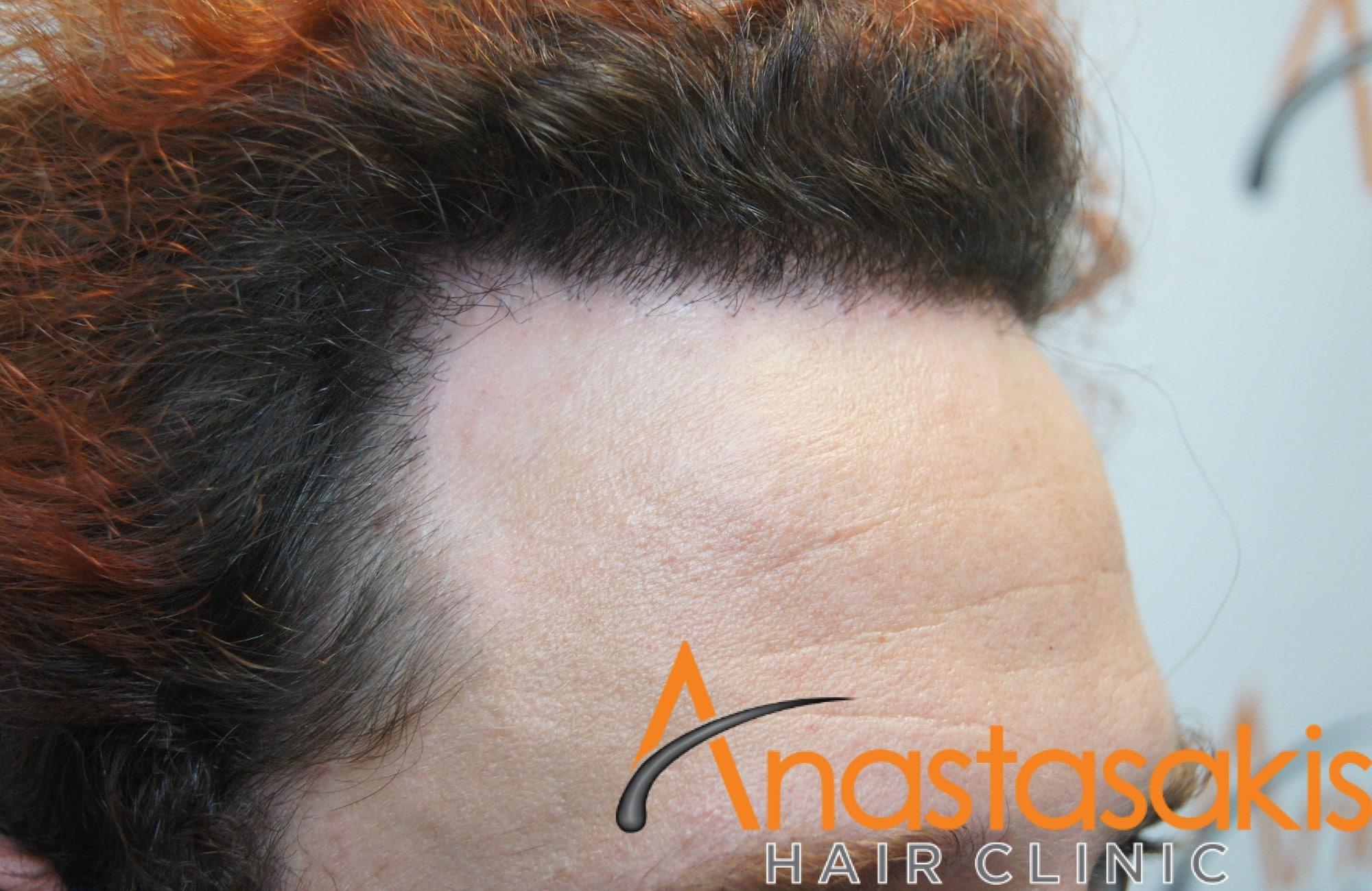 δεξης κροταφος ασθενούς μετα τη μεταμόσχευση μαλλιων με 2200 Fus